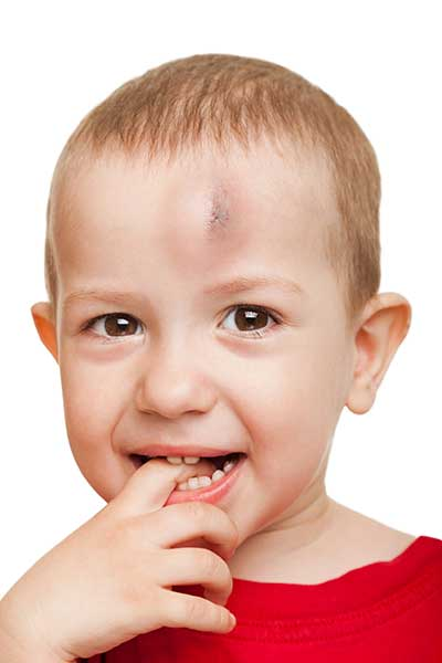 Head Trauma Bruise