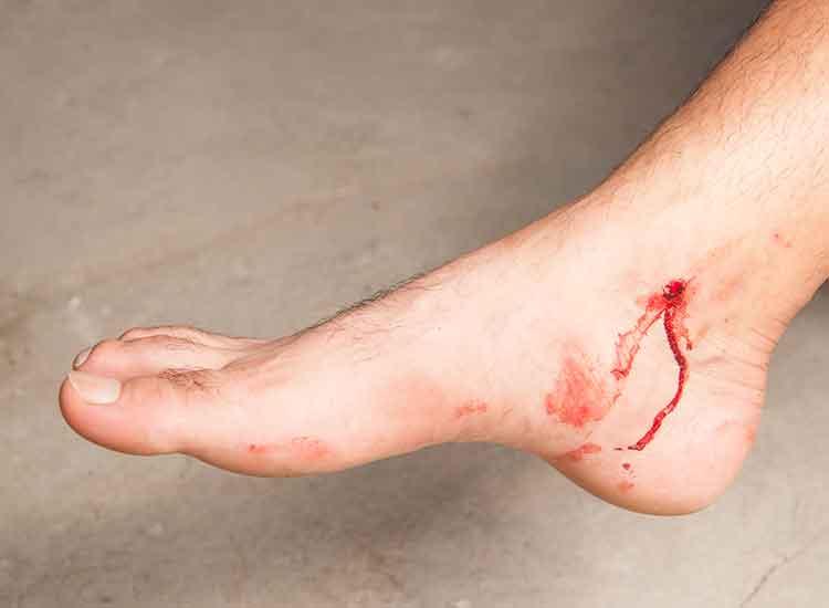 Skin Trauma Wound